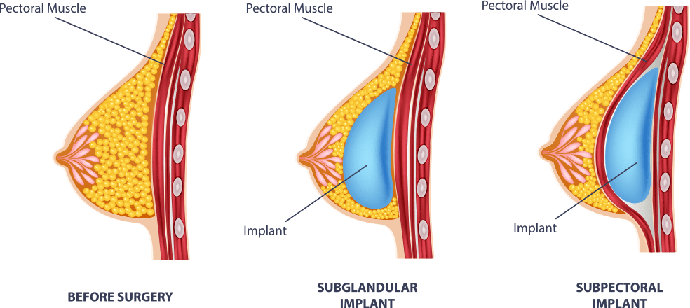 breast-implant